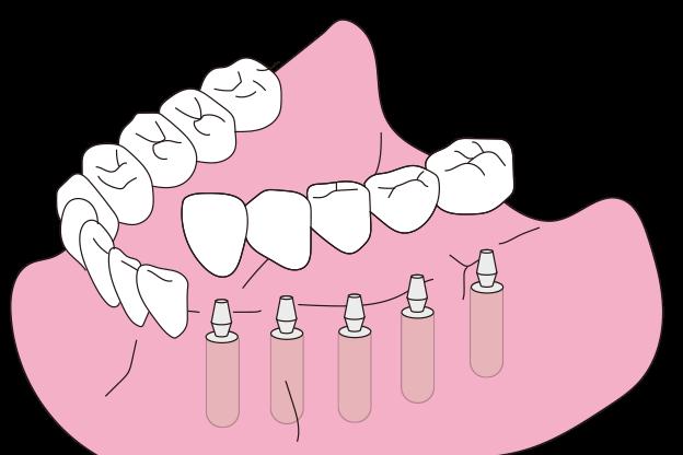矯正・インプラント・審美なら鳥取市青谷町の宮田歯科医院/固定式インプラント埋入手術の手順(2)